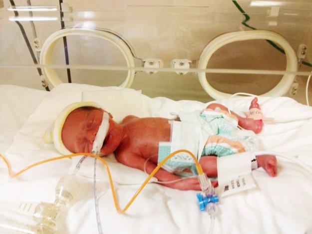 Minik Açelya birinci yaşını doktorlarıyla birlikte kutladı.