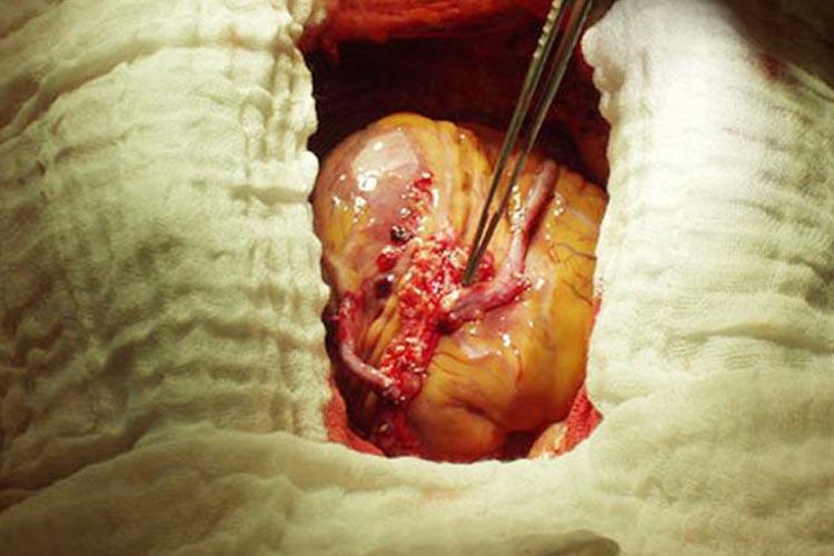 Canlı yayında çalışan kalbe ameliyat